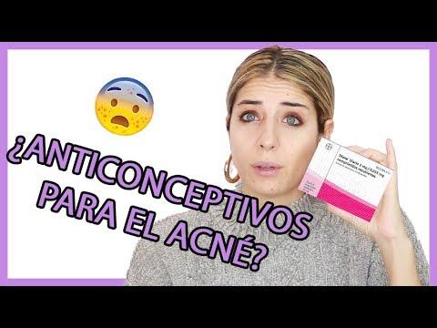 que pastilla anticonceptiva es buena para el acne
