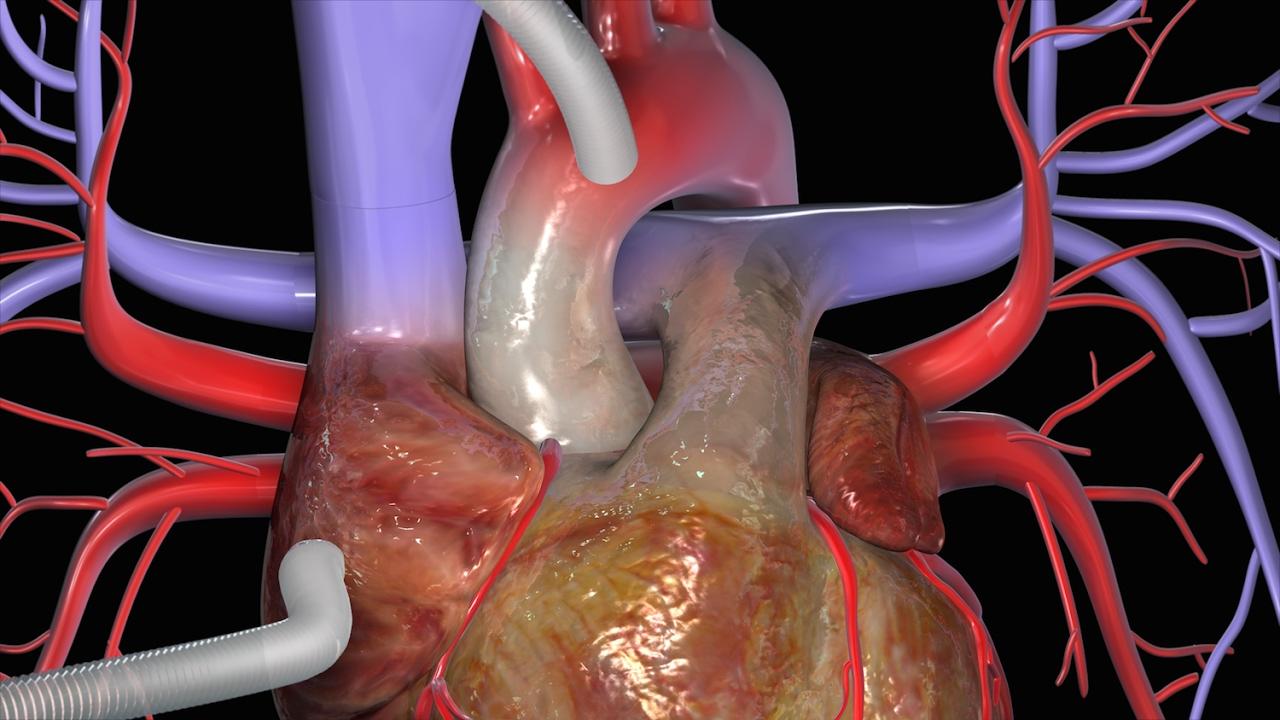 Cardiovascular Disease Diagram 冠動脈バイパス術(cabg) Youtube