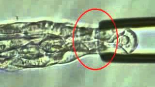 Preimplantasyon Genetik Tanı Uygulamasında Trofektoderm Biyopsi Yöntemi