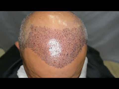 Fue hair transplant 2626 grafts Sharjah- Experience Abroad