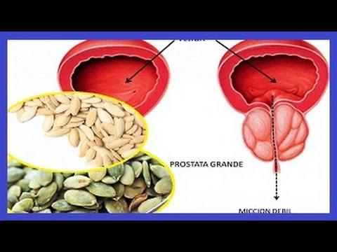Semillas de calabaza para la próstata inflamada