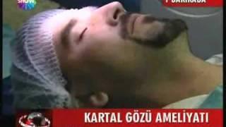 EFEKAN COSKUNSEVEN  TURKIYE'DE ILK iLASIK  show tv ANA HABER ILASIK.wmv