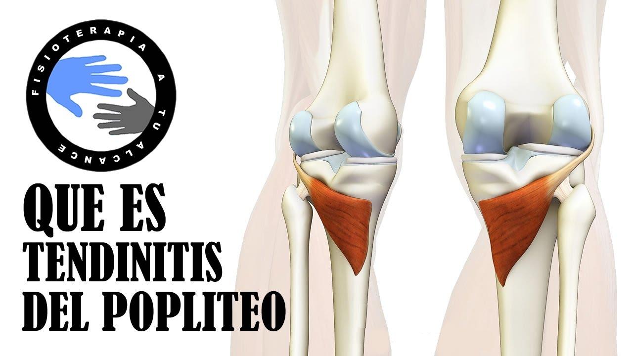 Tendinitis poplitea, que es y porque se produce el dolor detras de ...