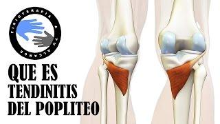 De dolor rodilla? la ¿Por cirugía de después pantorrilla en qué una