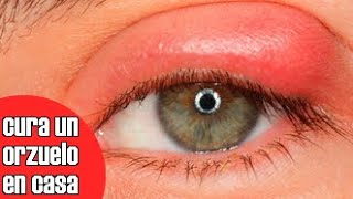 Saco ocular de tratamiento