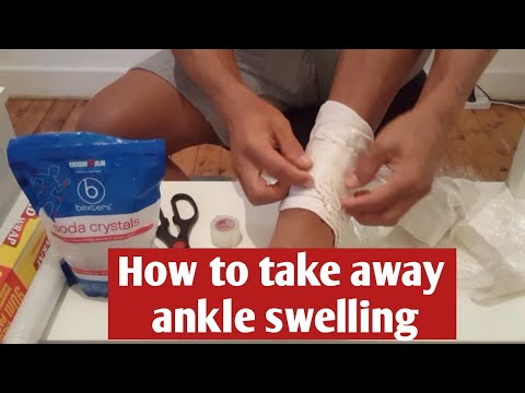How To Use Epsom Salt To Reduce Ankle Swelling