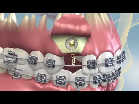 Kentucky Orthodontics & Invisalign: Impacted Canine Surgery