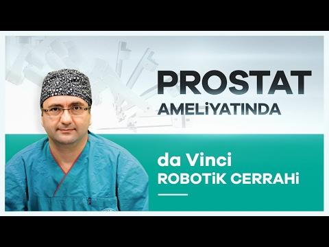 """""""da Vinci Robotik Cerrahi"""" Sistemiyle Prostat Ameliyatı Nasıl Yapılır? - Prof. Dr. Volkan Tuğcu"""