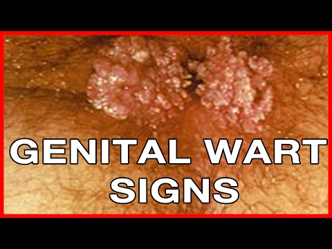 How to Recognize Genital Warts Signs
