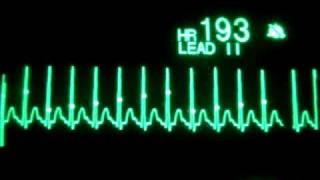 Supraventricular Tachycardia with Synchronized Cardioversion