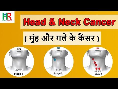 Head & Neck cancer in hindi: गले, गर्दन, कान, नाक के कैंसर के लक्षण,  stages, जांच, इलाज, Survival ,