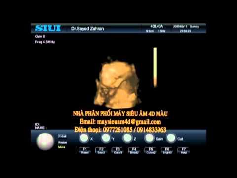 Hình ảnh siêu âm 4D thai nhi 36 tuần tuổi