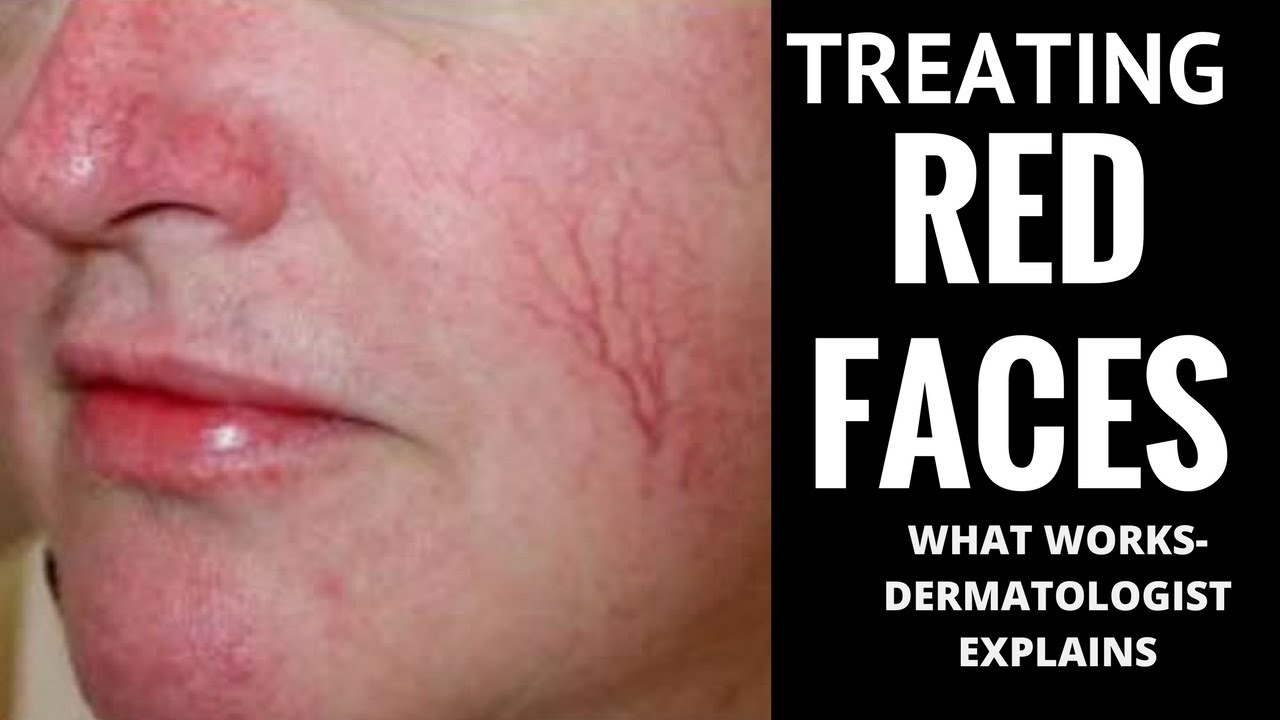 New Uriage line for skin with rosacea – Pharmaceutical Post – Todo