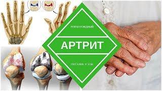 Ревматоидный артрит - причины и виды лечения
