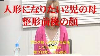 人形になりたい2児の母、整形前後の顔 https://videotopics.yahoo.co.jp/videolist/official/others/pbd259ef3d5341908b2611cceffde78af 絶滅したはずのタスマニア ...