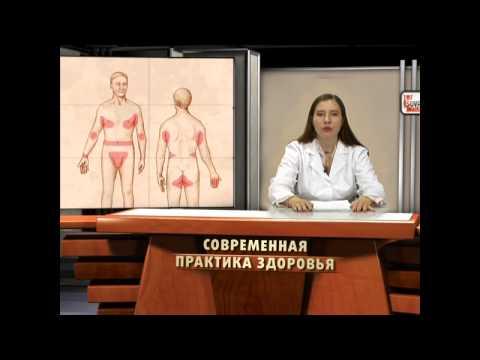 Контагиозный моллюск – фото, причины и симптомы (у детей
