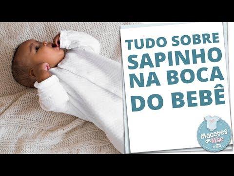 SAPINHO NA BOCA DO BEBÊ: O QUE É E COMO TRATAR | MACETES DE MÃE