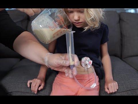 Bolus Feeding by Syringe—Gravity Method