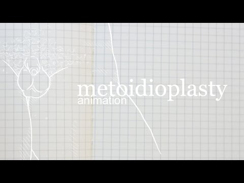 How Metoidioplasty Works [Animation]