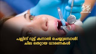 root canal tratment for teeth