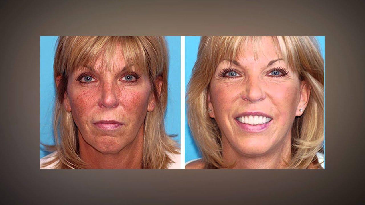 boulder-facial-surgery-naked-mile-screenshots