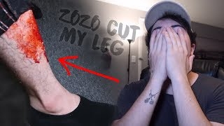 I CUT MY LEG OPEN! (BRUTAL) *zozo came after us that night*