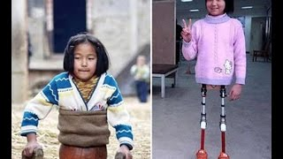 Photo Of A Legless Girl In China Inspires And Confuses On Facebook