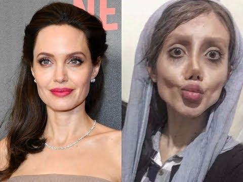 Brett 'Bside' Matthews - Woman Undergoes 50 Operations To Look Like Angelina Jolie