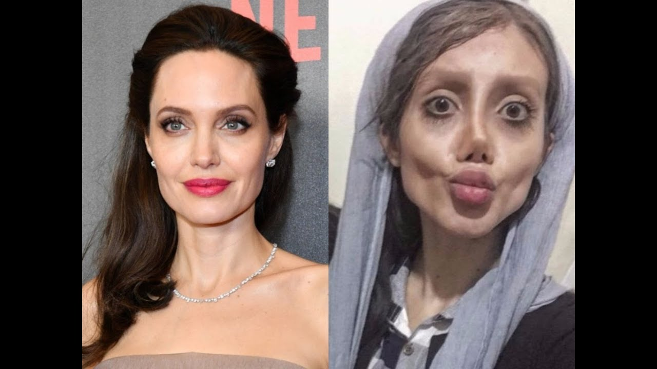 19 Year Old Girl Got 50 Surgeries To Look Like Angelina
