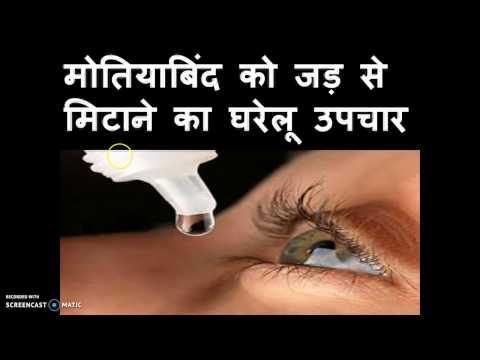 मोतियाबिंद को हटाने का सफल घरेलू इलाज | Cataract Treatment- Motiabind ka Ghrelu Upay !!