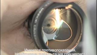 Лечение глаукомы. Клиника микрохирургии глаза на Маерчака. Красноярск(Диагностика и лечение глаукомы -- одно из приоритетных направлений в работе Клиники микрохирургии глаза..., 2011-10-10T06:38:26.000Z)