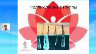 онлайн-консультация с Николаем Лукачевым Трансплантация волос: мифы и реальность