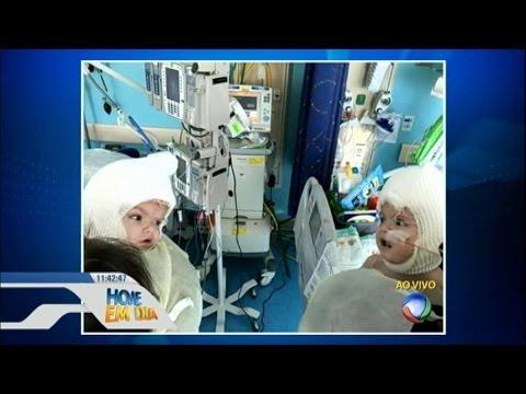 Foto Mostra Gêmeos Siameses Se Olhando Pela Primeira Vez Após Cirurgia