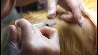 Мезотерапия волос. Техника мезотерапии. Как проходит процедура мезотерапии для волос