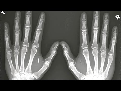 how to find and remove rfid chips