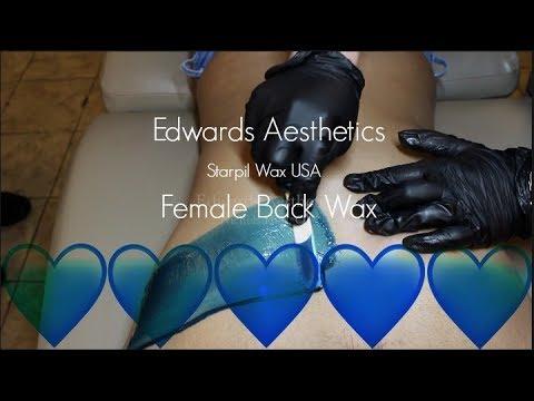 Edwards Aesthetics  Female Back Wax  Starpil BLUE
