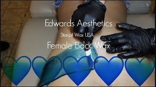 Baixar Edwards Aesthetics | Female Back Wax | Starpil BLUE