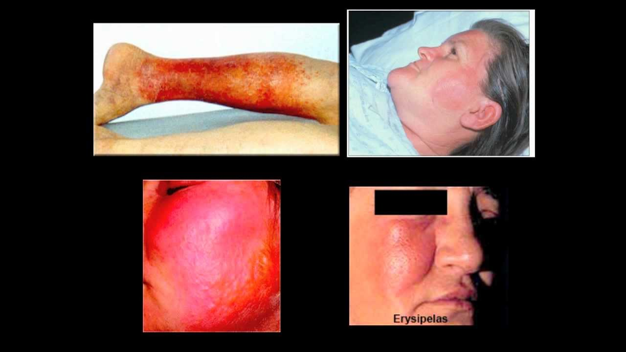 Erysipelas of the leg: symptoms, prevention, treatment 93