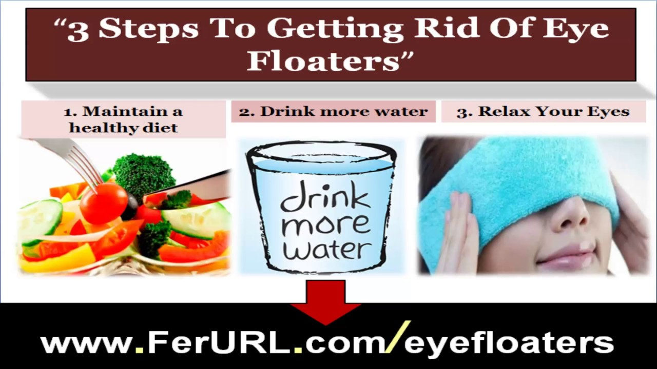 Eye Floaters Natural Solution – Anexa Beauty