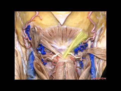 Far Lateral Approach and Jugular Foramen - Part 1 of 2