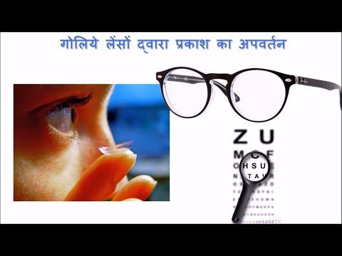 लेंस (Lenses) - कक्षा 10 विज्ञान (Class 10 Science) - Hindi