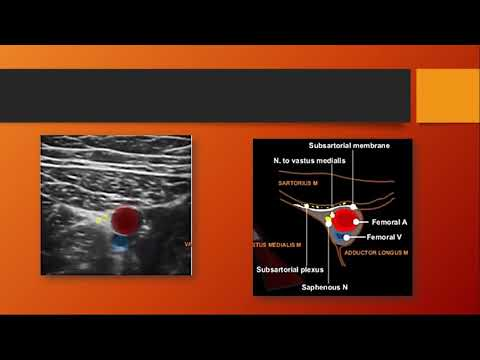 Lecture: Ultrasound Guided Adductor Canal Block