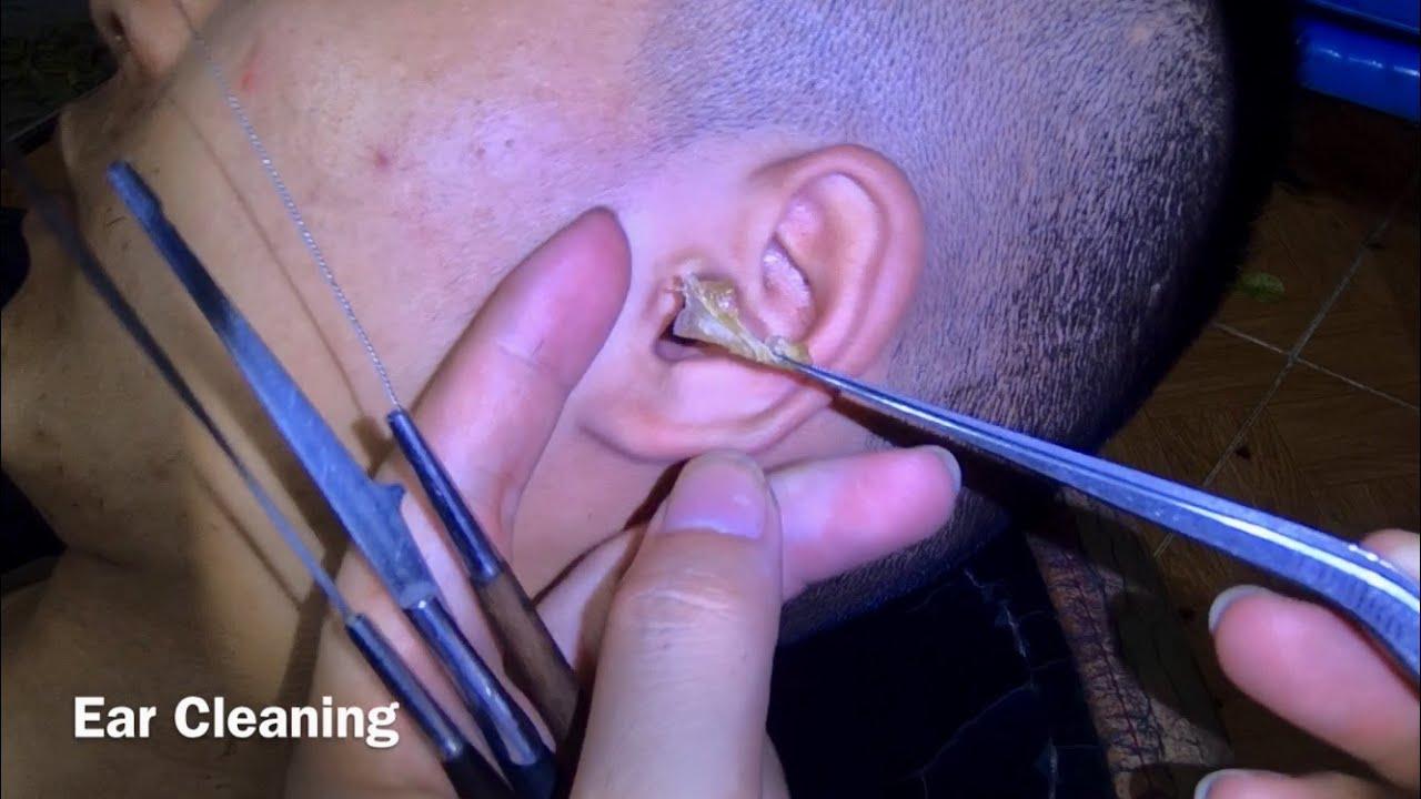 耳掃除 귀 청소 Ear Cleaning #199