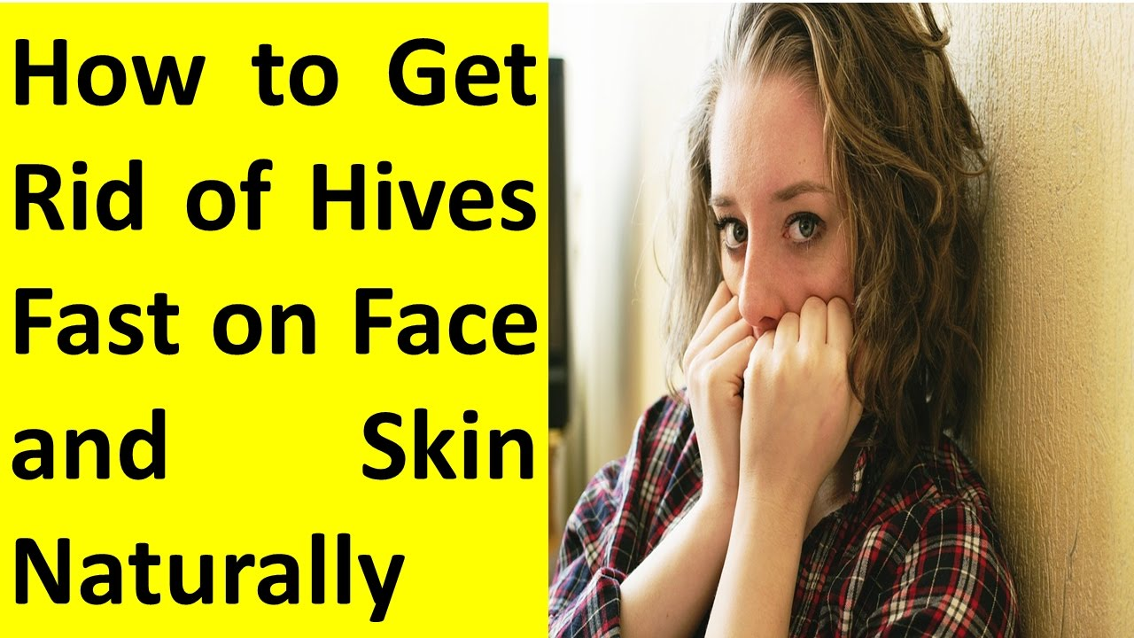 How to get rid of hives fast on face naturally youtube how to get rid of hives fast on face naturally ccuart Images