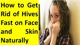 How to Get Rid of Hives Fast on Face Naturally