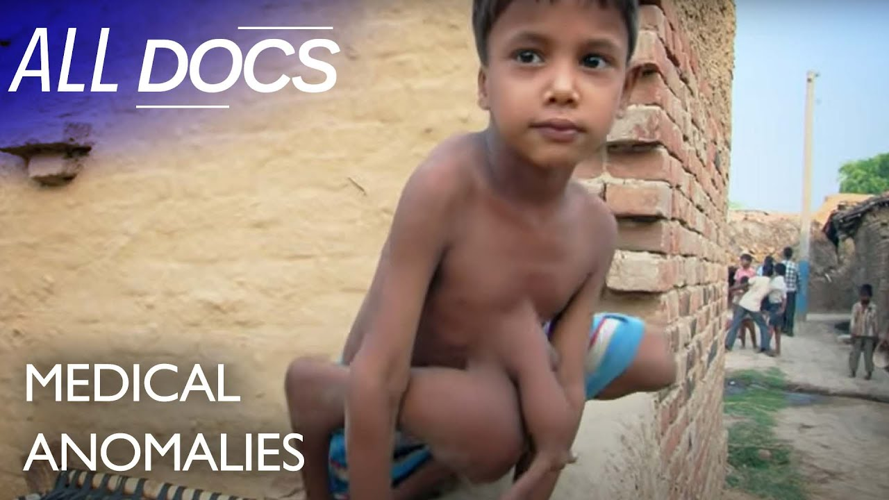 Download The 8 Limbed Boy - Parasitic Twin   Extraordinary People Documentary   Reel Truth