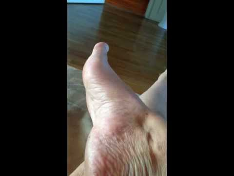 muscle twitching foot - youtube, Skeleton