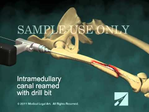 Intramedullary Nailing of Right Femur Fracture
