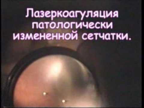 Лазерная коагуляция сетчатки глаза. Лазеркоагуляция