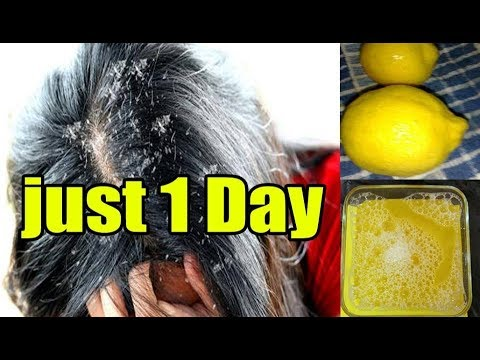 in just i use Get Rid of dandruff in 1 Day ,instant dandruff Remedy at home Dandruff treatment